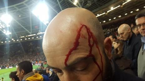 CĐV Chelsea và West Ham ẩu đả ngay trên sân - ảnh 5