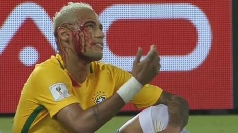 Ăn đòn đổ máu, Neymar tuyên bố không thay đổi cách chơi - ảnh 1
