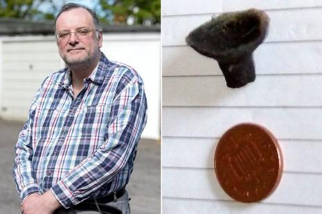 Đồ chơi kẹt trong mũi, 44 năm sau mới phát hiện - ảnh 1