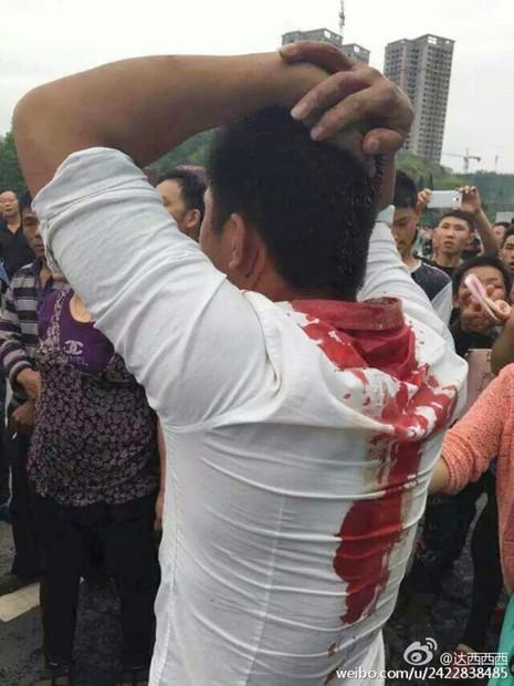Trung Quốc: Hàng ngàn người biểu tình, tấn công cảnh sát - ảnh 2