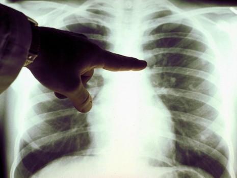 Ảnh 1: Hình ảnh lá phổi bị ung thư. Ảnh: INDEPENDENT