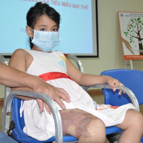Hi hữu bệnh nhi bị chảy máu vào bàng quang - ảnh 1