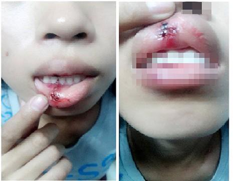 Công an Đồng Nai làm việc với nạn nhân vụ clip bị đánh dập môi - ảnh 1