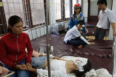 Nổ bình ga khi thực hành, 5 học sinh tiểu học bị bỏng - ảnh 1