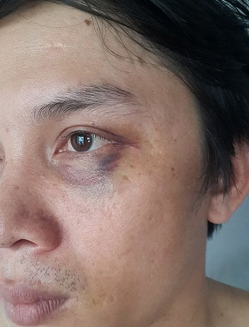 Phóng viên tố bị đánh khi tác nghiệp - ảnh 1