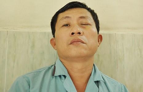 Một bệnh nhân múc bỏ mắt do nhiễm nấm - ảnh 1