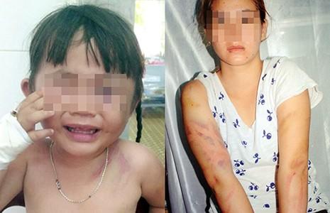 Bé gái ba tuổi bị bạo hành bất tỉnh - ảnh 1