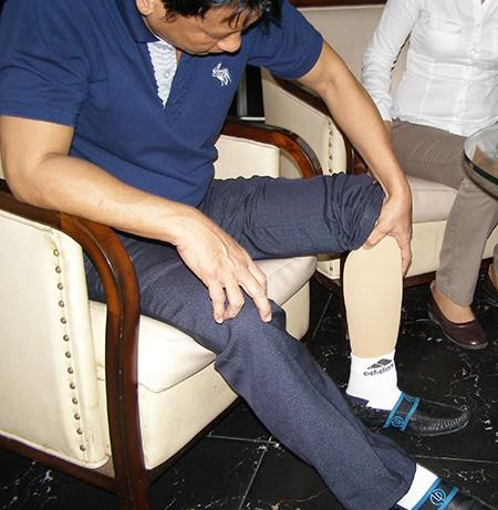 Người bệnh bị mất chân, Sở Y tế đủng đỉnh - ảnh 1