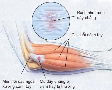 Triệu chứng đau khuỷu tay và cách phòng ngừa - ảnh 2