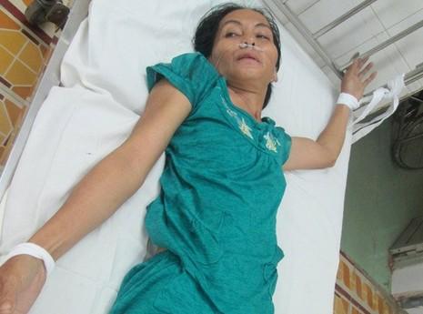 Vụ bé sơ sinh bị đâm vào đầu: Thủ phạm nghi bị tâm thần - ảnh 2