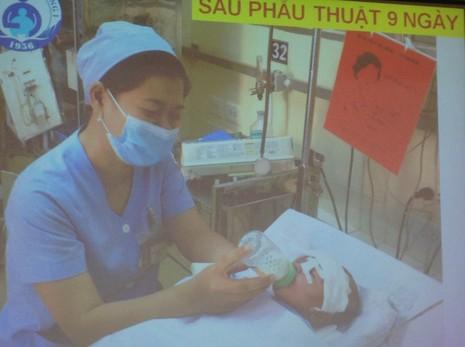 Bé sơ sinh bị đâm vào đầu đã hồi phục ngoạn mục - ảnh 2