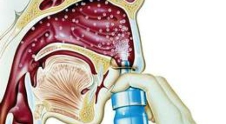 Thuốc xịt mũi chứa dexamethasone có gây teo niêm mạc mũi? - ảnh 1