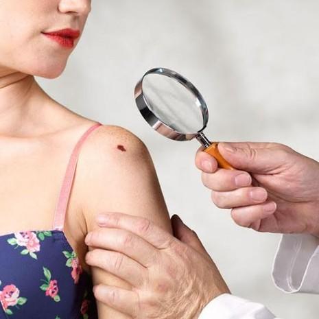 5 nguy cơ không ngờ gây ung thư da - ảnh 1