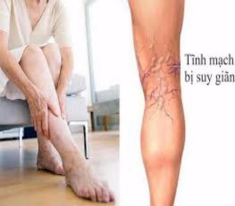 i gân xanh ở bắp chân là dấu hiệu của bệnh suy giãn tĩnh mạch.