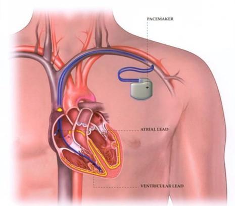 máy tạo nhịp tim