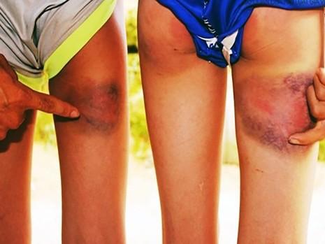 Kỷ luật cảnh cáo thầy giáo đánh 6 học sinh bầm tím - ảnh 1