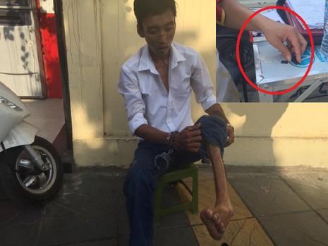 Bị què một chân, nam thanh niên vẫn mang theo ma túy - ảnh 1