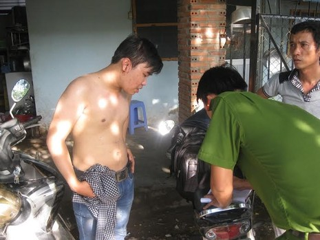 Hai phóng viên bị đánh trọng thương khi đang tác nghiệp - ảnh 1