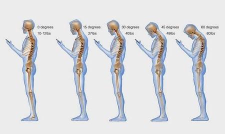 Sử dụng smartphone nhiều có thể ảnh hưởng xấu đến cột sống