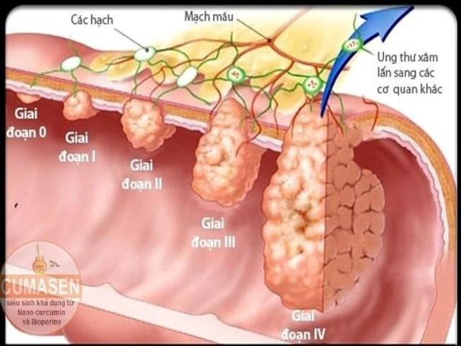 6 triệu chứng thầm lặng của ung thư đại tràng