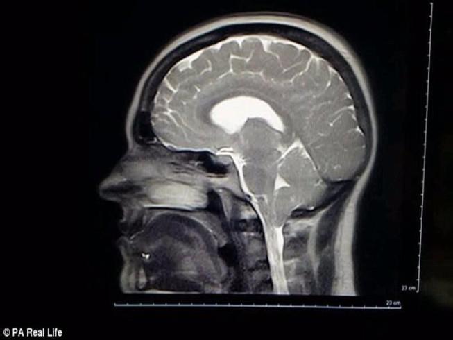 Không dám cười to vì sợ... thủng màng não
