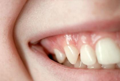 Kết quả hình ảnh cho Tạm biệt răng nhiễm trùng màu trong vòng vài giờ