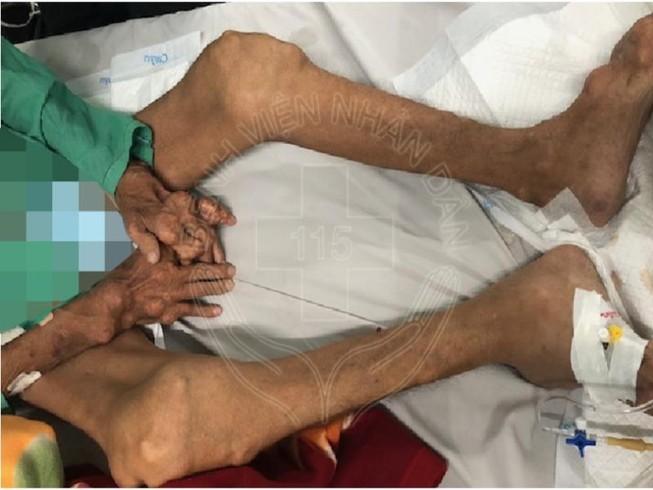 Chân tay biến dạng nặng do tự uống thuốc trị gút
