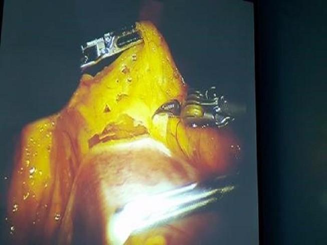 Lần đầu tiên dùng robot phẫu thuật ung thư dạ dày