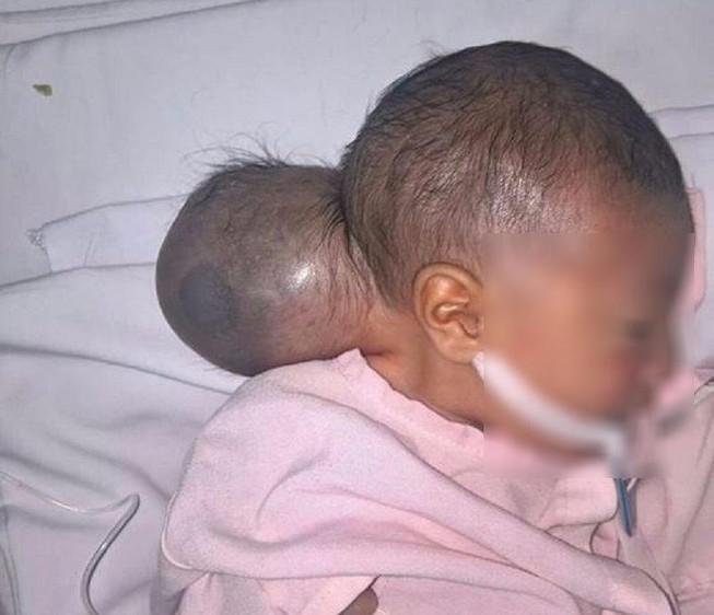 Phẫu thuật thành công cho bé gái '2 đầu' bị bỏ rơi