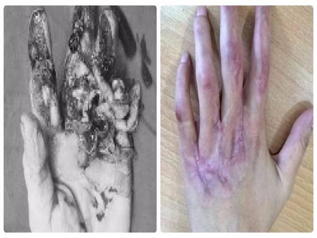 Hồi sinh kỳ diệu bàn tay dập nát cho cô gái trẻ