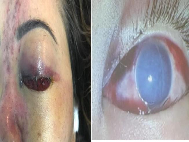 Tiêm thuốc nâng mũi ở chung cư, cô gái bị mù một mắt