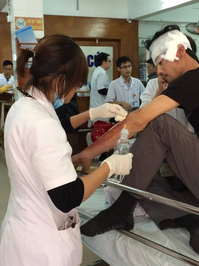 Gần 2.000 ca cấp cứu do đánh nhau trong hai ngày Tết