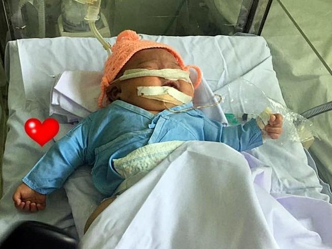 Hơn 200 triệu đồng giúp bé gái gãy tay, ngạt thở sau sinh