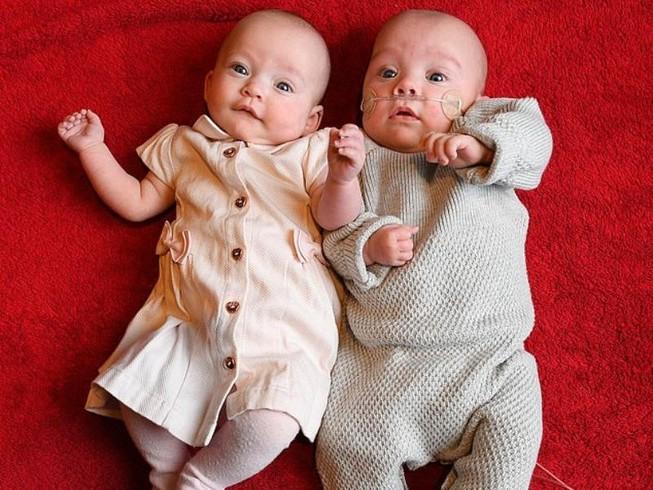 Kì lạ cặp song sinh ra đời cách nhau 12 ngày
