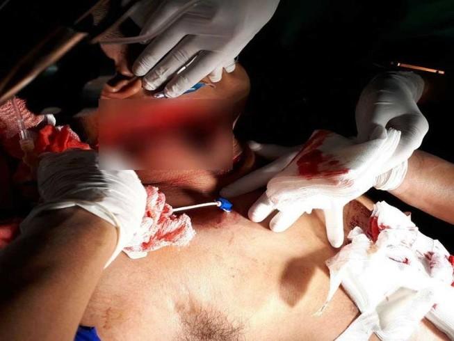 Nối lại ruột cho một nạn nhân bị đâm 10 nhát dao