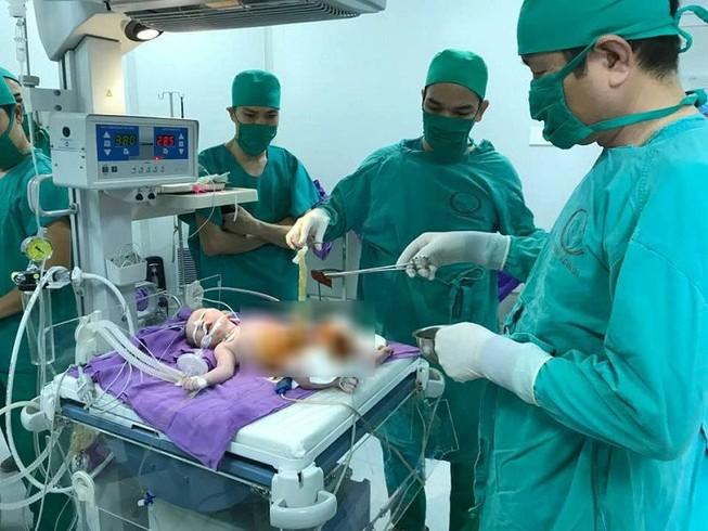 Cấp cứu trả tạng thoát vị rốn vào ổ bụng cho bé mới sinh