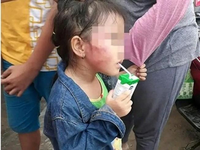 Khởi tố, bắt tạm giam cô giáo bạo hành trẻ ở Bình Chánh