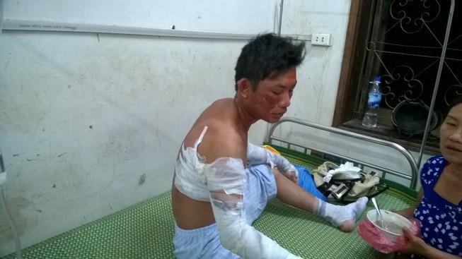 Nổ ở nhà máy chế biến tinh bột sắn, 5 người bị thương