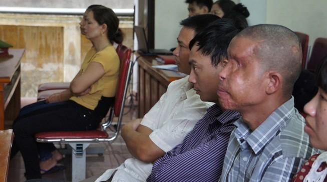 Xét xử vụ gài mìn xe khách: Thương tâm nạn nhân bị mù 2 mắt, cụt 2 tay