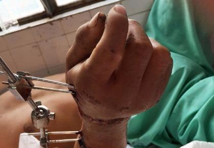 Nối thành công bàn tay gần bị đứt lìa do máy trộn bê tông
