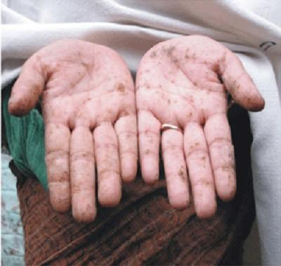 Nhiễm độc chì được coi là ngộ độc báo động ở Mỹ