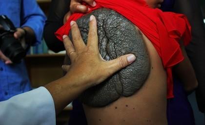 Cô bé lưng rùa được phẫu thuật tách 'mai rùa' thành công