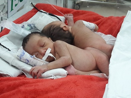 Hai bé song sinh dính liền bị viêm phổi trước ngày mổ tách