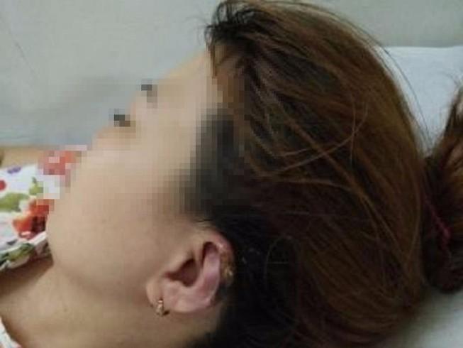 Hoại tử vành tai, tróc da đầu khi đi làm tóc