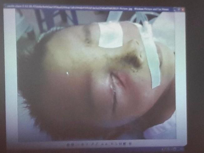 Cứu sống bé 3 tuổi bị súng bắn vào mắt