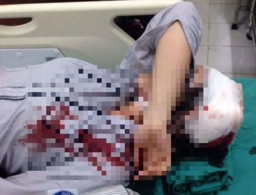 Đã xác định một trong số hung thủ đánh nữ sinh lớp 10
