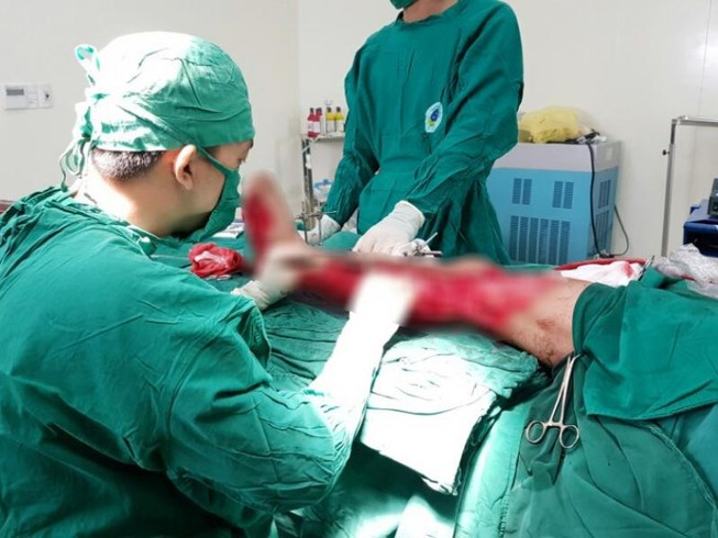 Cứu bệnh nhân nát chân trái vì bị máy cuốn