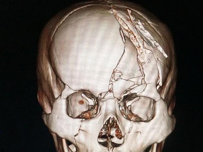 Cứu sống nạn nhân sọ vỡ nát nhiều mảnh