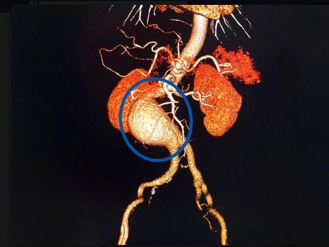 Có khối u vùng bụng, hãy nghĩ tới phình động mạch chủ