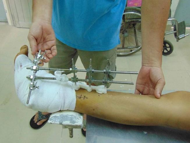 3 lần phẫu thuật cứu bàn chân dập nát do xe nâng cán